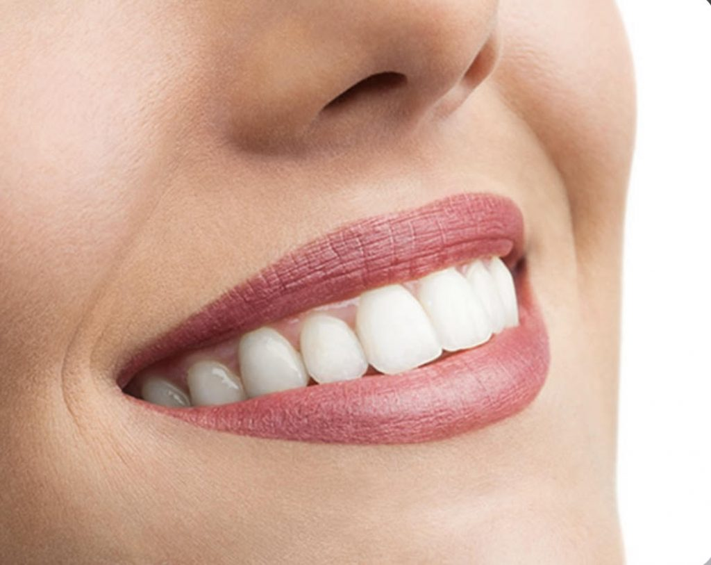 esthetische-tandheelkunde